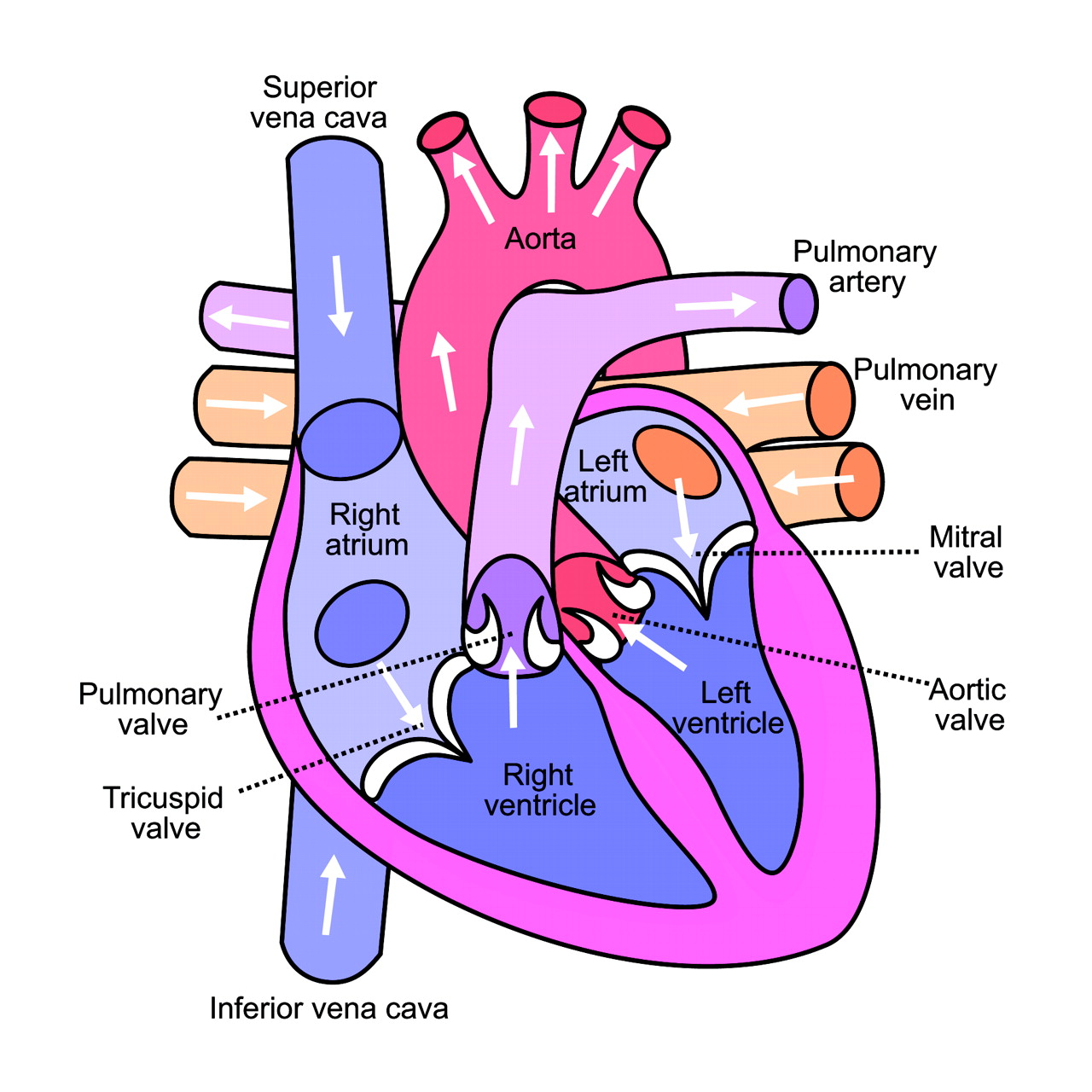 Pediatric Heart Malformations